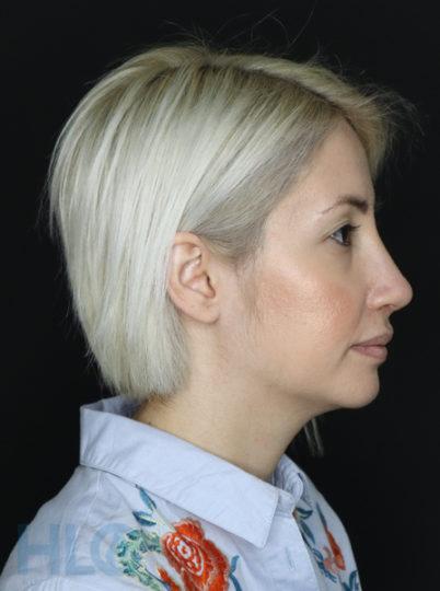 После операции. Коррекция перегородки и кончика носа. Спустя 15 дней - Вид справа