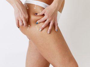 апаратне лікування целюліту на ногах