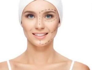 підтяжка обличчя хірургічним методом