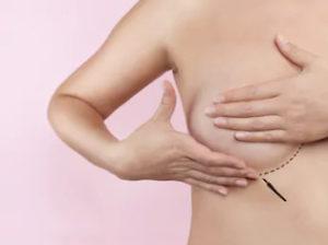 Что можно и нельзя делать после увеличения груди?