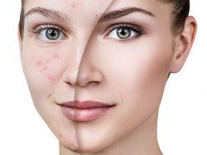 видалення плям на шкірі за допомогою лазера