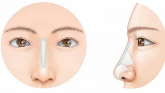 безопераційна корекція носа