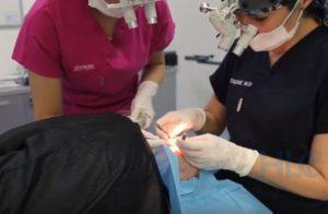 Процедура пересадки волосся на голову в Туреччині