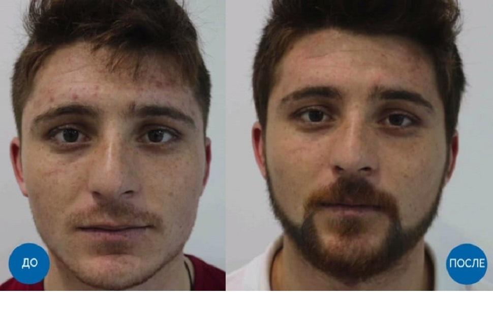 До и после пересадки 1400 графтов волос мужчине с подбородка на бороду