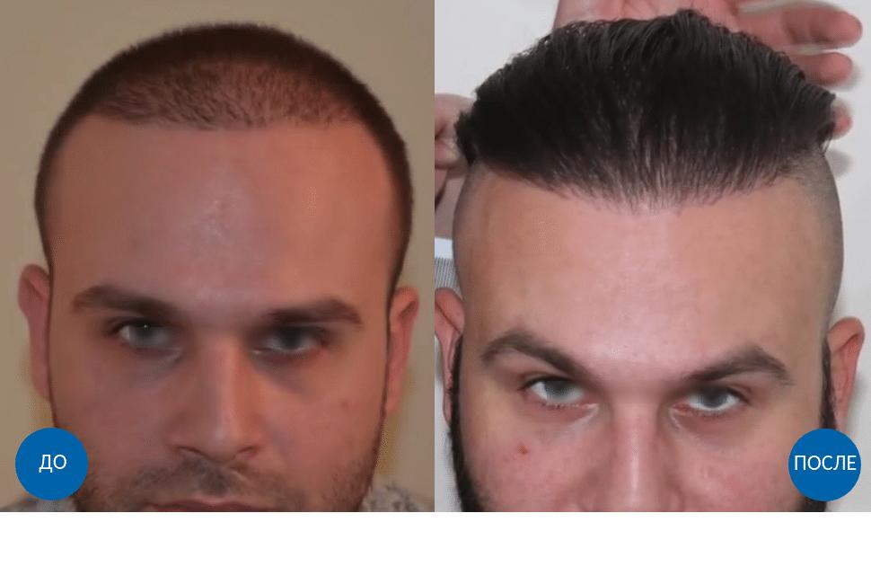 Результат пересадки 3200 графтов волос мужчине с затылка на переднюю линию роста волос
