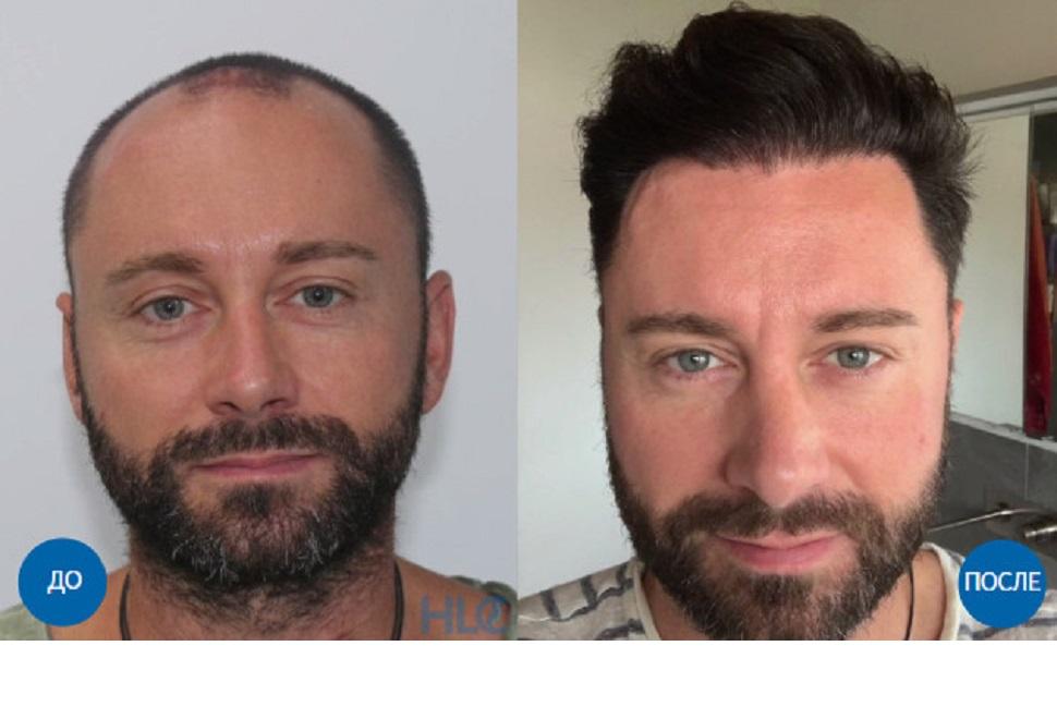 Фото до и после пересадки 4000 графтов волос мужчине с затылка на лоб