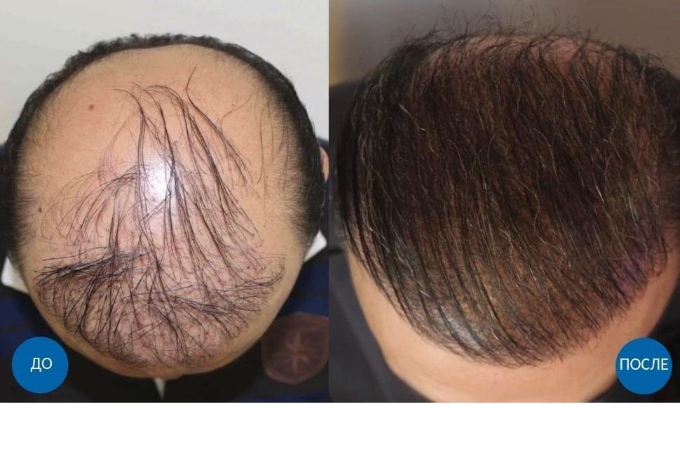 Фото до и после пересадки 3800 графтов волос мужчине в Киеве
