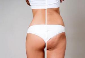 жіноча естетика тіла