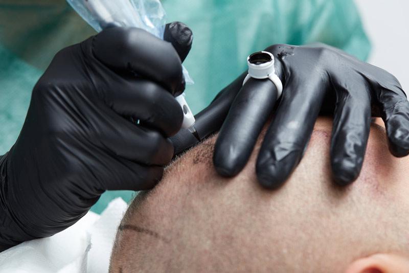 мікропігментація шкіри голови