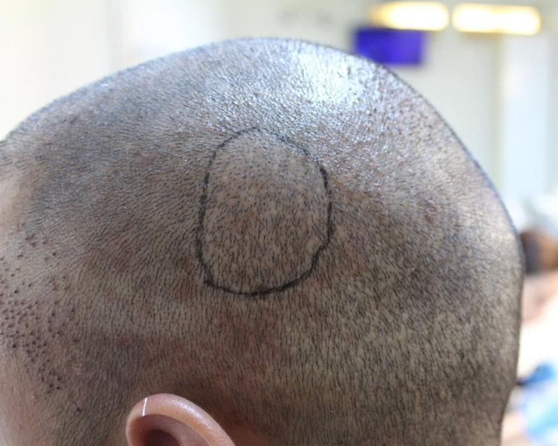 после трихопигментации головы