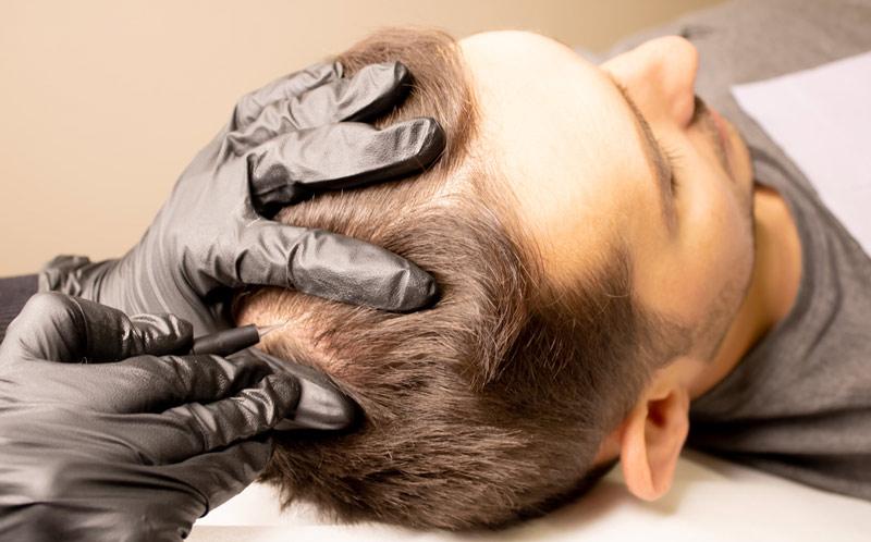 что такое трихопигментация кожи головы