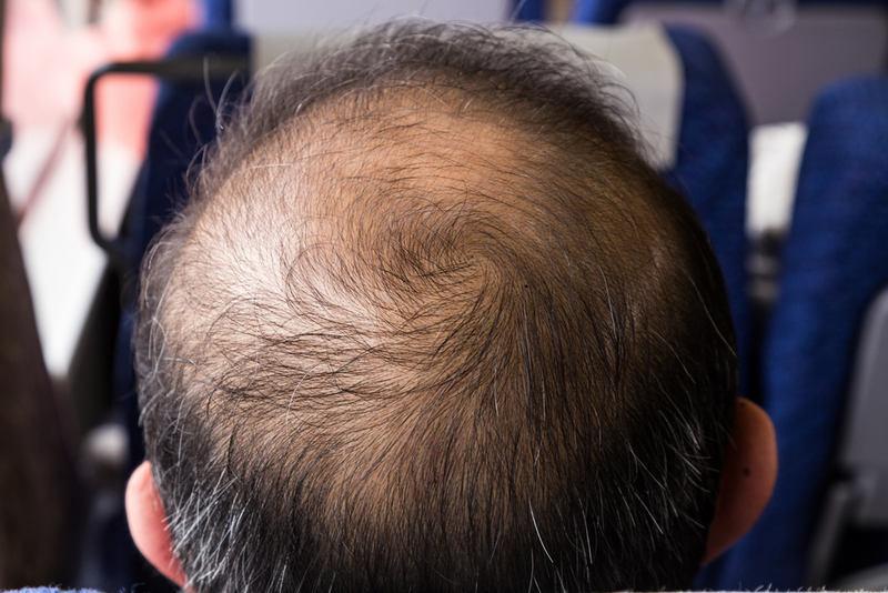Влияние дигидротестостерона на волосы у мужчин
