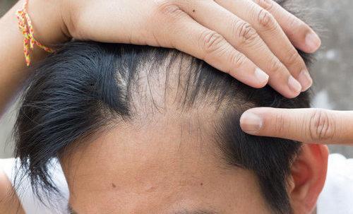 Який зв'язок між дигідротестостероном і випадінням волосся?