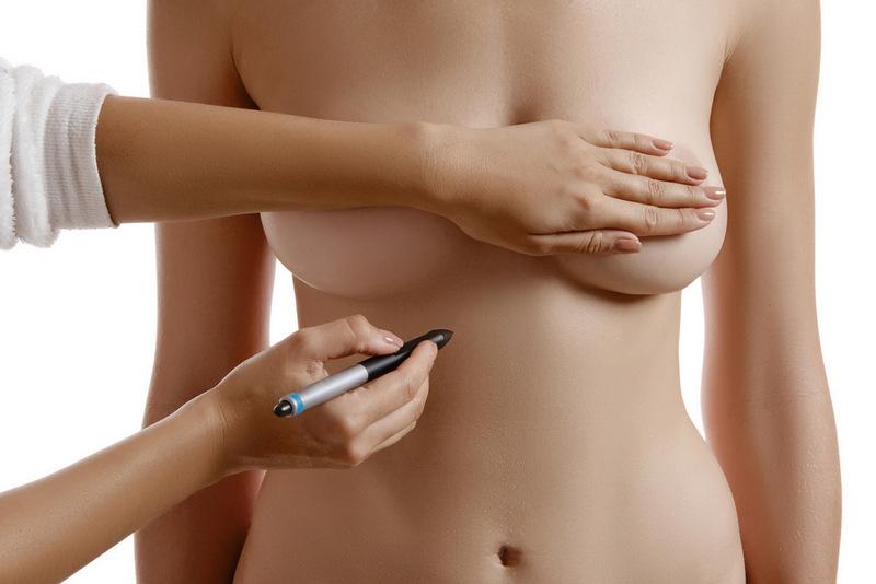 Коли жінки вирішують зменшити груди?