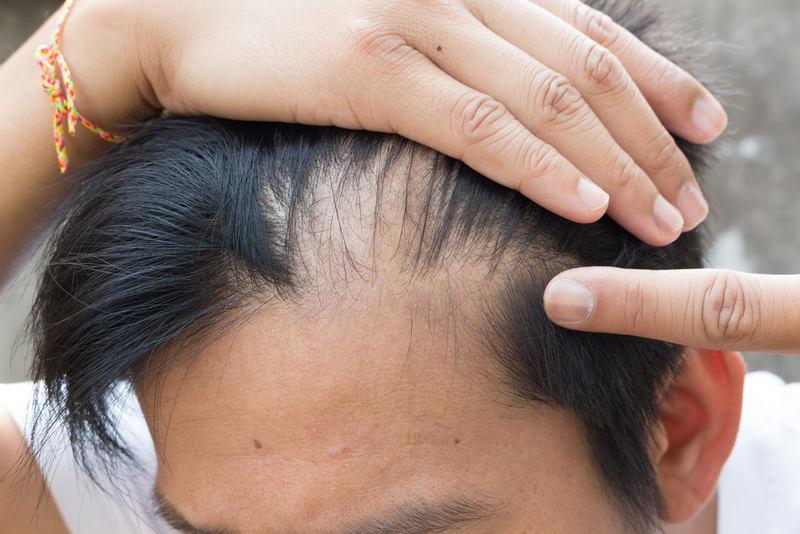 при повышенном дигидротестостероне трансплантация волос является эффективным решением