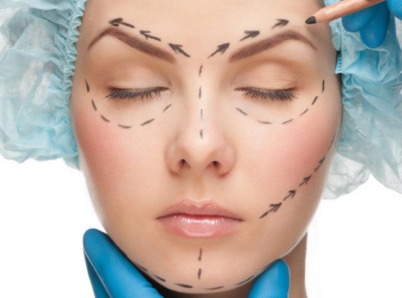 хирургический лифтинг лица для женщины