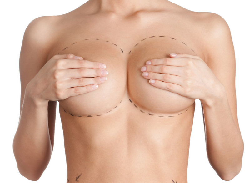 увеличение груди при помощи операции