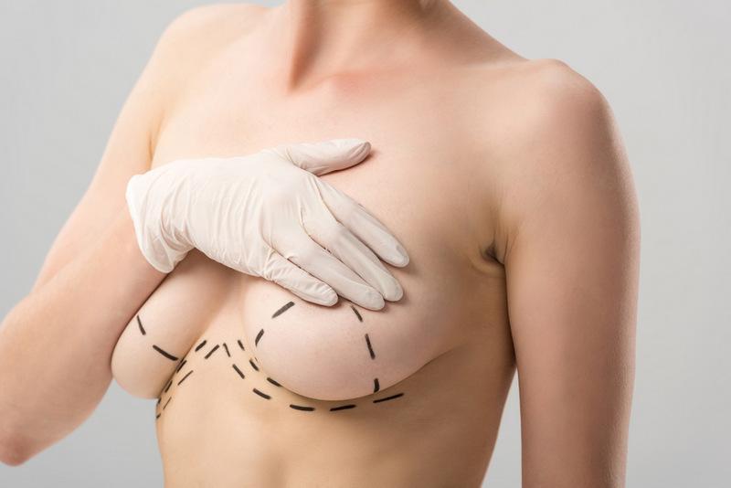 шрами після мастопексії