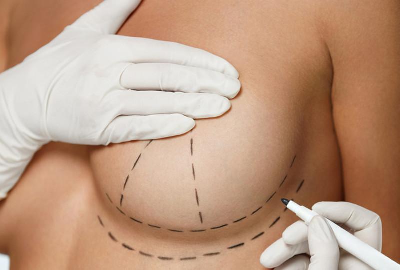 метод вертикальной подтяжки груди
