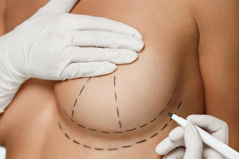 проведение процедуры по уменьшению груди