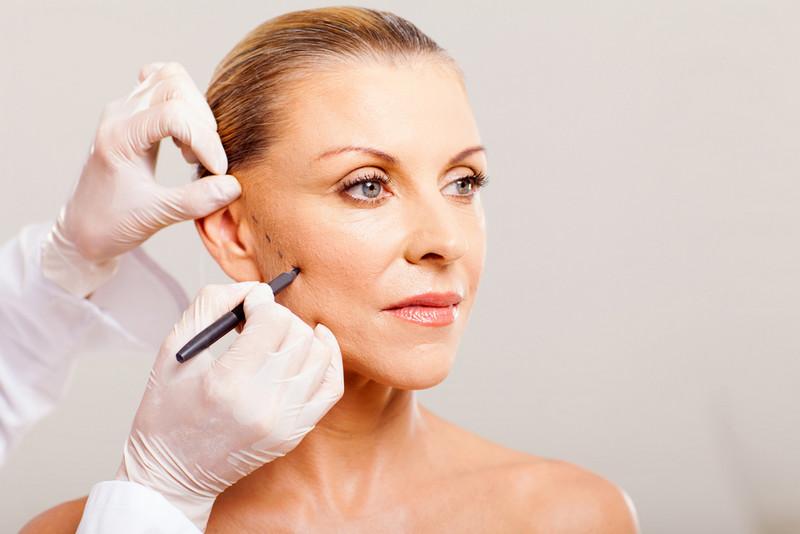 ендоскопічний метод пластики обличчя