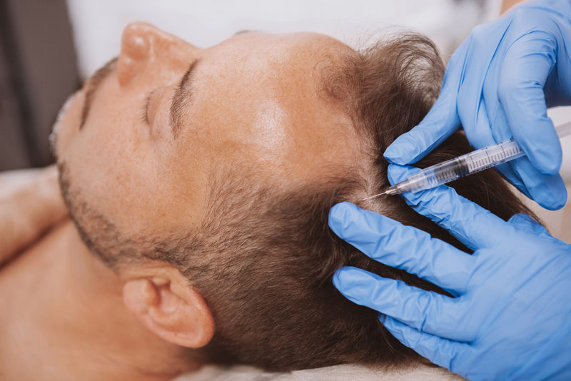PRP-терапия помогает восстановить волосы