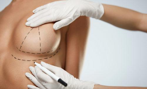 виды и методы хирургической подтяжки груди
