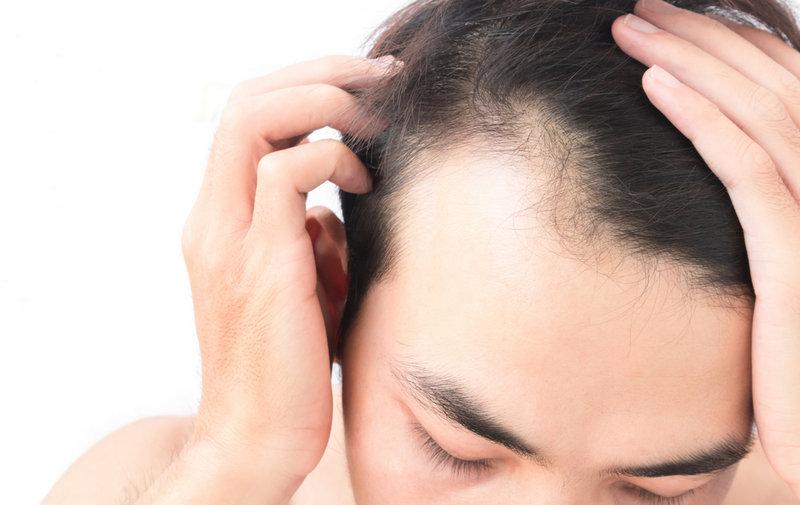 що таке пересадка волосся