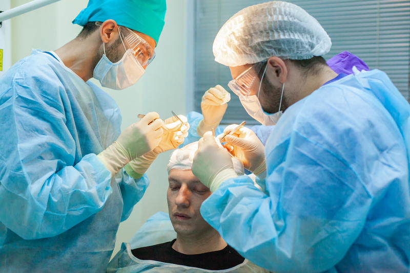 методы и способы пересадки волос