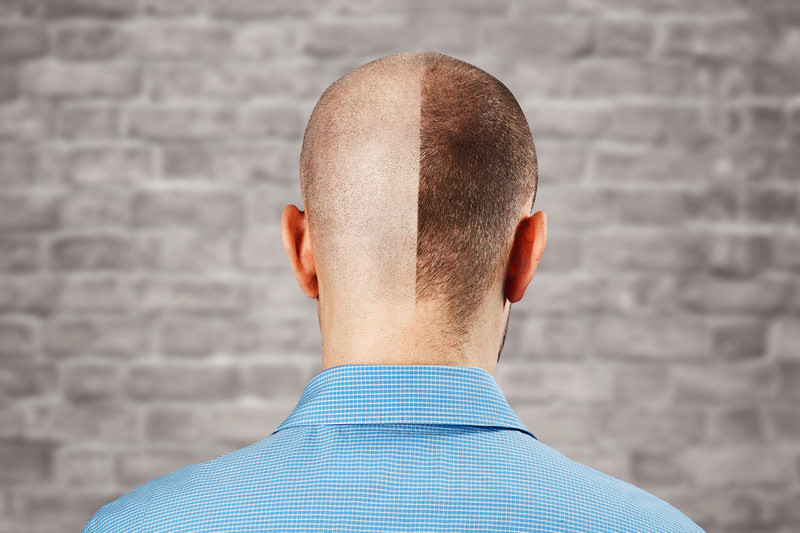 результаты пересадки волос