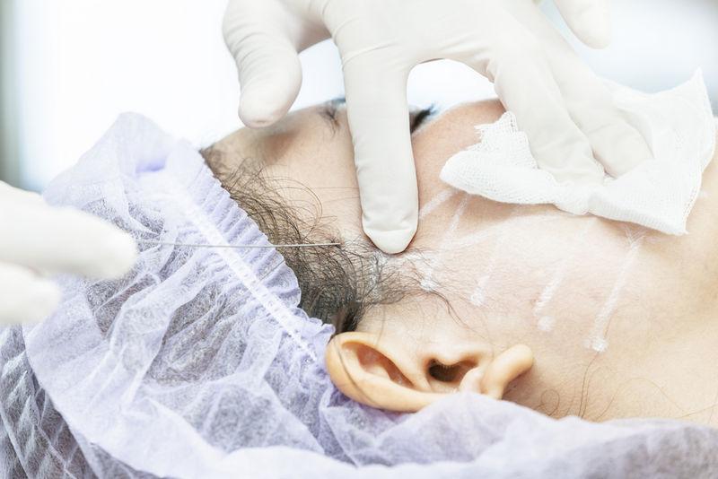 процедура нитевой подтяжки