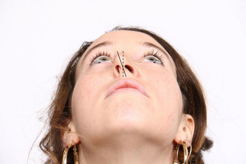 кому необхідне вирівнювання носа