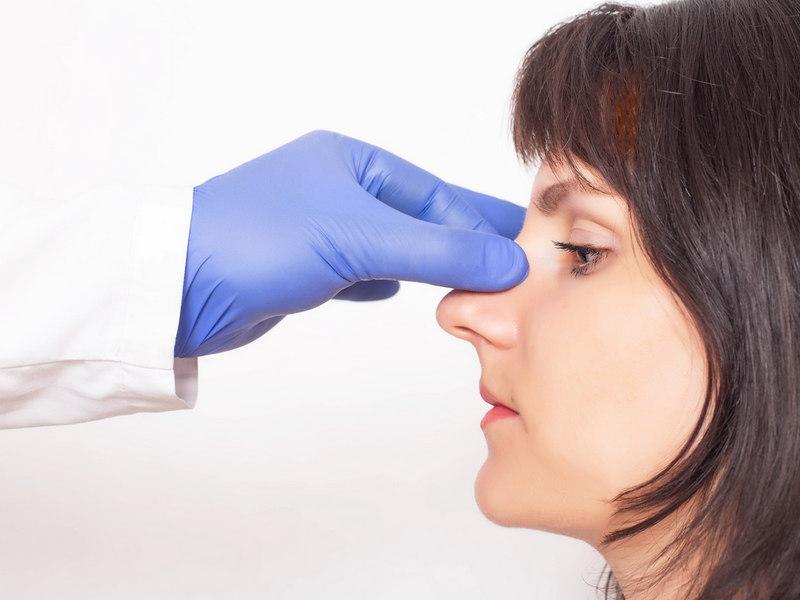 искривление носовой перегородки: последствия