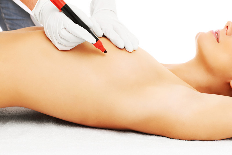 вибір клініки для мамопластики